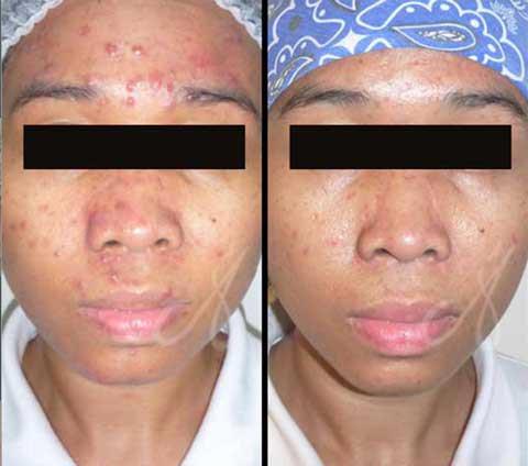 Before After Acne Treatment Aesthetic Clinic KL Alainn
