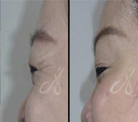 Before After Crow Feet Aesthetic Clinic KL Alainn