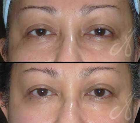 Before After Exilis Elite Eye Treatment Aesthetic Clinic KL Alainn