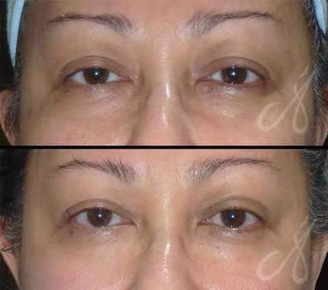 Before After Exilis Elite Eye Treatment Aesthetic Clinic KL Alainn