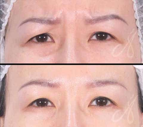 Before After Glabella Frown Line Treatment Aesthetic Clinic KL Alainn