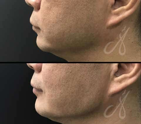 Before After Jaw Line Aesthetic Clinic KL Alainn