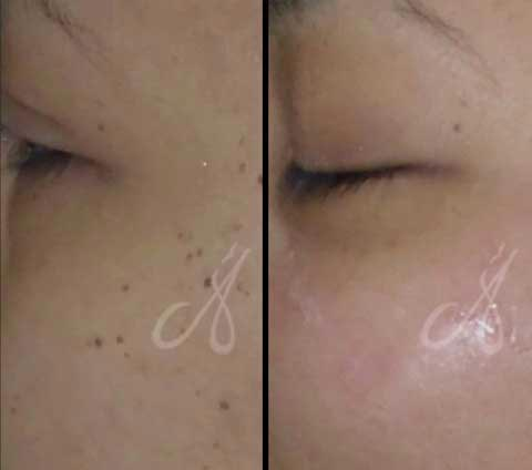 Before After Laser Ablation Treatment Aesthetic Clinic KL Alainn
