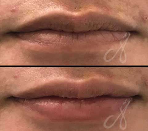Before After Lip Rejuvenation Aesthetic Clinic KL