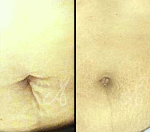 Before After Loose Skin Treatment Aesthetic Clinic KL Alainn