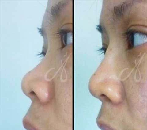 Before After Non-Surgical Rhinoplasty Aesthetic Clinic KL Alainn