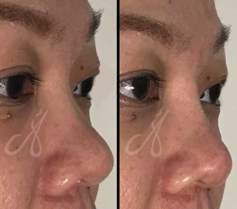 Before After Nose Augmentation Aesthetic Clinic KL Alainn