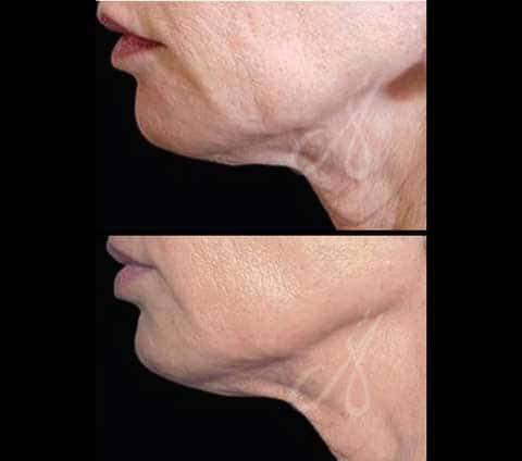 Before After Radio Wave Frequency Ultrasound Aesthetic Clinic KL Alainn