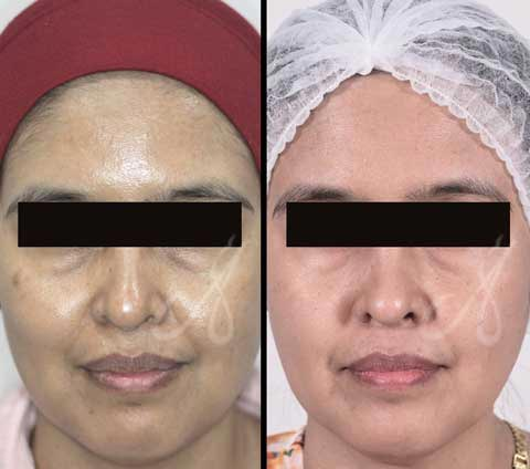 Before After Skin Glowing Treatment Aesthetic Clinic KL Alainn