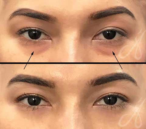 Before After Tear Trough Treatment Aesthetic Clinic KL Alainn