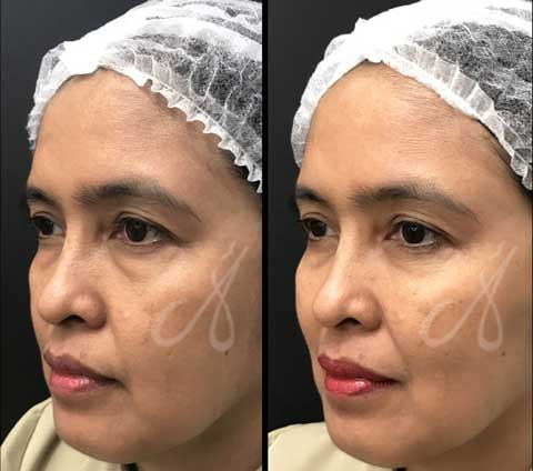 Before After Tear Trough Aesthetic Clinic KL Alainn