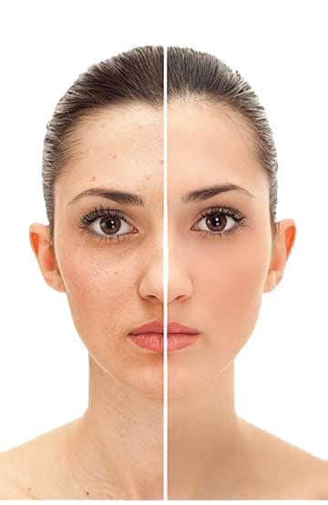 Anti Aging Skin Treatment Aesthetic Clinic KL Alainn