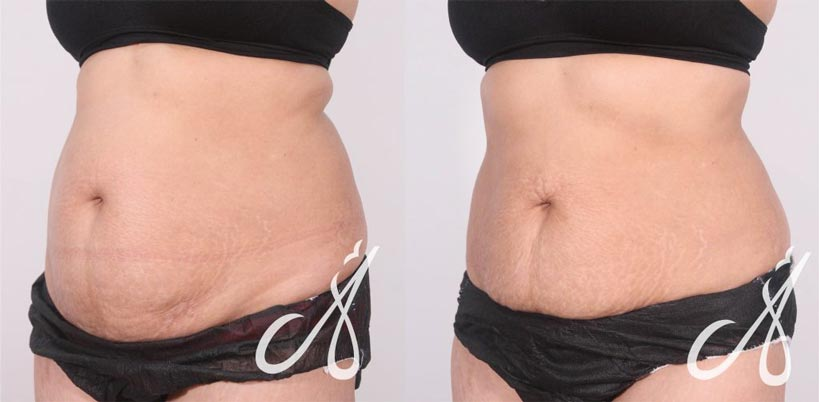 Before After Body Contouring Smart Sculpting Aesthetic Clinic KL Alainn