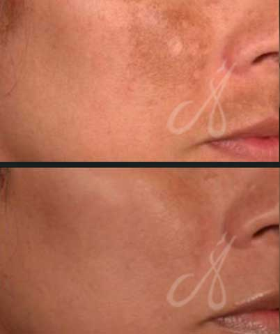 Before After Carbon Peel Laser Treatment Aesthetic Clinic KL Alainn