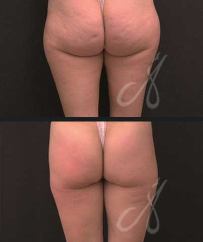 Before After Cellulite Treatment Aesthetic Clinic KL Alainn