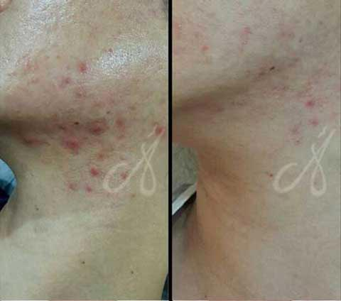 Before-After-Chemical Peel Treatment Aesthetic Clinic KL Alainn