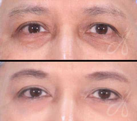 Before After Dermal Fillers Aesthetic Clinic Alainn