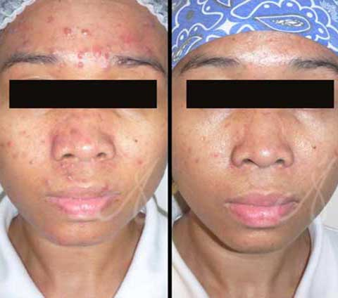 Before After Fractional Laser Resurfacing Treatment Aesthetic Clinic KL
