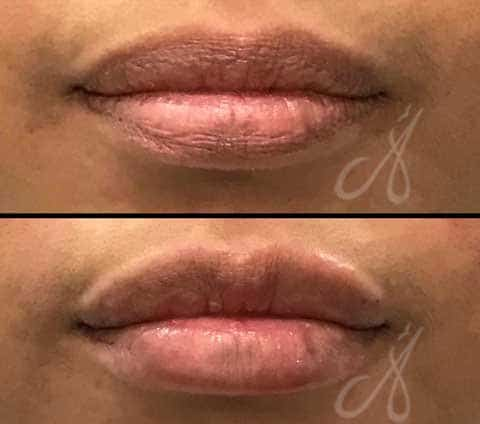 Before After Lip Rejuvenation Aesthetic Clinic KL Alainn