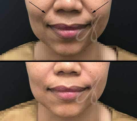 Before After Nasolabial Fold Treatment Aesthetic Clinic KL Alainn-2