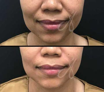 Before After Nasolabial Fold Treatment Aesthetic Clinic KL Alainn
