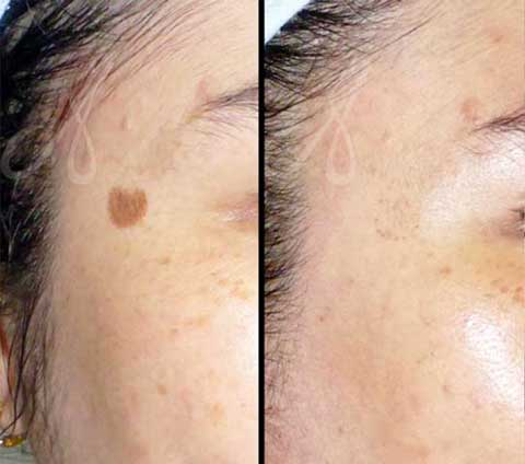 Before After Solar Lentigo Treatment Aesthetic Clinic KL Alainn