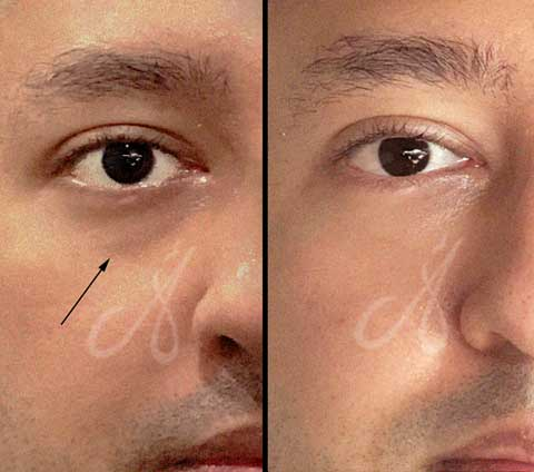 Before After Tear Trough Treatment Aesthetic Clinic KL Alainn