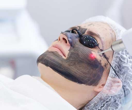 Carbon Pee Laser Treatment Aesthetic Clinic KL Alainn