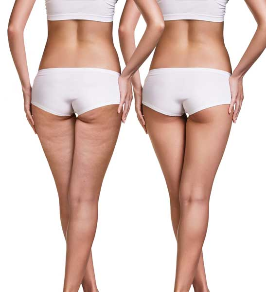 Cellulite Treatment Aesthetic Clinic kl Alainn