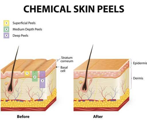 Chemical Peel Treatment Aesthetic Clinic KL Alainn