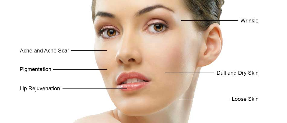 Face Treatment Aesthetic Clinic KL Alainn