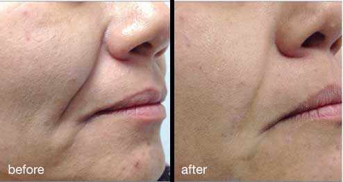 Fotona4D Before and After Aesthetic Clinic KL