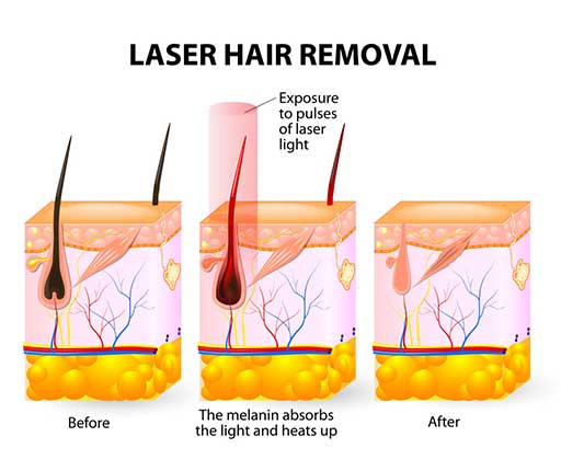 Laser Hair Removal Treatment Aesthetic Clinic KL Alainn