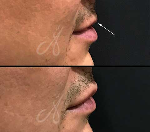 Before After Lip Rejuvenate Aesthetic Clinic KL-Alainn-6