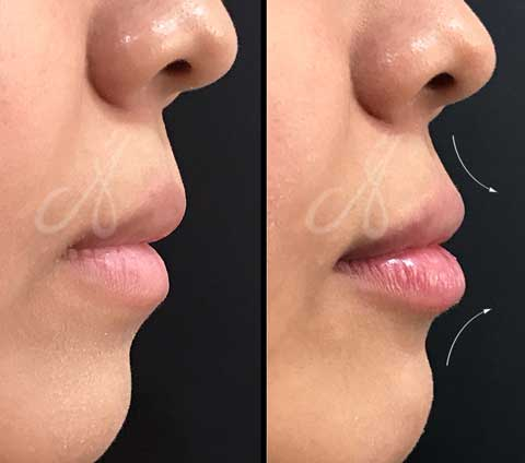 Before After Lip Rejuvenation Aesthetic Clinic KL-Alainn