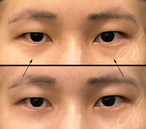 Before After Tear Trough Treatment Aesthetic Clinic KL