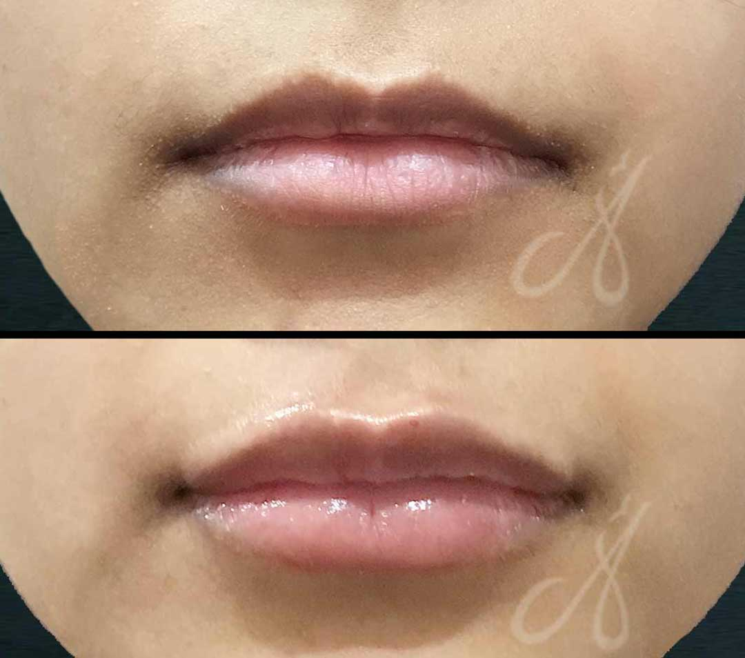 Before After Lip Rejuvenation Aesthetic Clinic KL Alainn