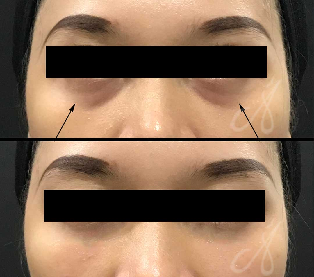 Before After Tear Trough Treatment Clinic KL Alainn