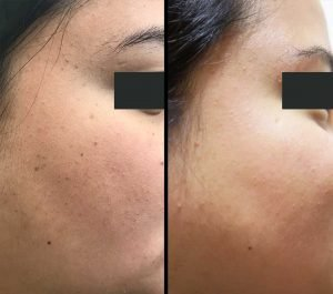 Dermatosis Papulosa Nigra Treatment Aesthetic Clinic KL