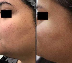 Dermatosis Papulosa Nigra Treatment Aesthetic Clinic KL