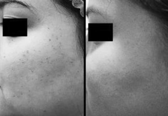 Dermatosis Papulosa Nigra Aesthetic Clinic KL Alainn