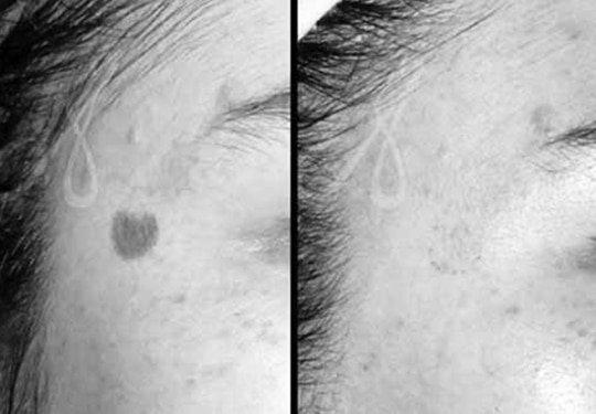 Q Switch laser Treatment Aesthetic Clinic KL Alainn-2