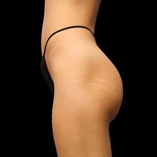 buttocks before