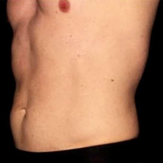 abdomen after