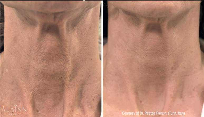 Profhilo Before And After (1 month after 2nd treatment)